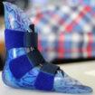 prosthetic-foot-stock-2291027_1280